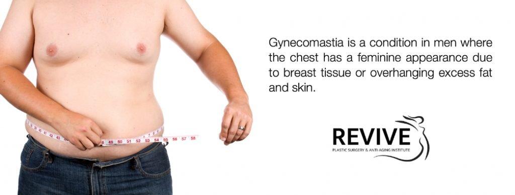 gynecomastia surgery coral gables